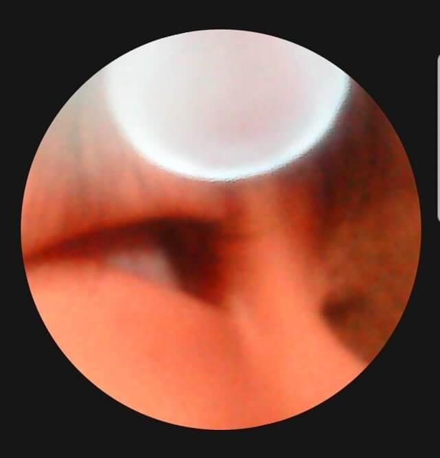 イヤースコープMieRuの映像